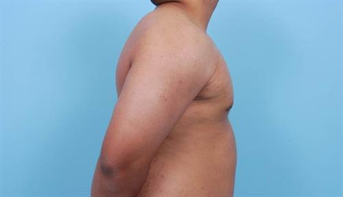 Gynecomastia After Photo | Miami, FL | Baker Plastic Surgery