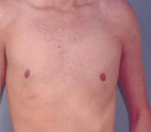 Gynecomastia After Photo | Miami, FL | Baker Plastic Surgery