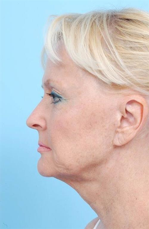 Facelift & Neck Lift Before Photo | Miami, FL | Baker Plastic Surgery
