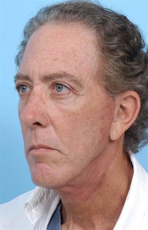 Facelift & Neck Lift After Photo   Miami, FL   Baker Plastic Surgery
