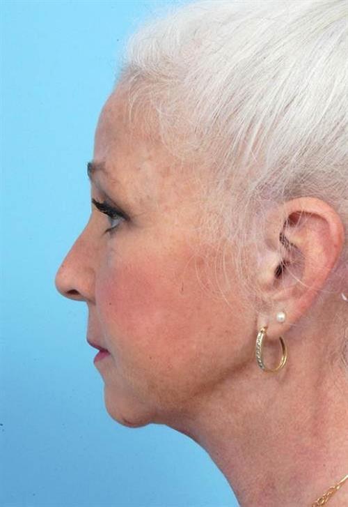 Facelift & Neck Lift After Photo | Miami, FL | Baker Plastic Surgery