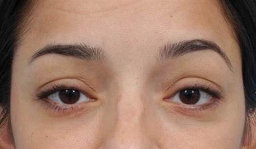 Eyelid Surgery After Photo | Miami, FL | Baker Plastic Surgery