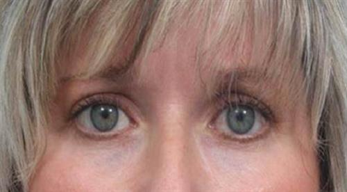 Eyelid Surgery After Photo | Miami, FL | Baker Plastic Surgery