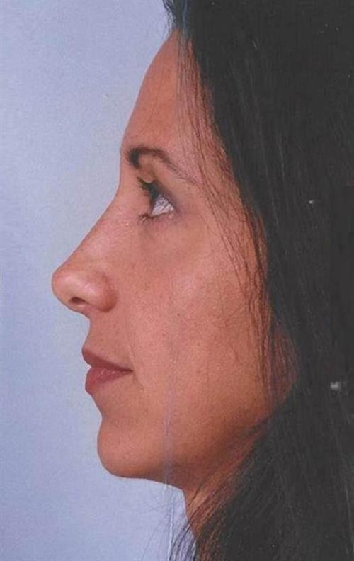 Rhinoplasty After Photo | Miami, FL | Baker Plastic Surgery