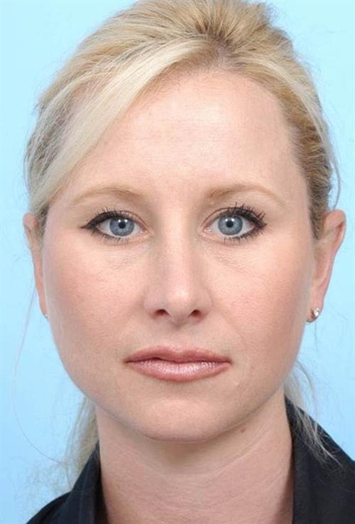 Rhinoplasty After Photo   Miami, FL   Baker Plastic Surgery