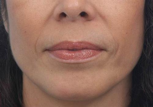 Injectable Fillers Before Photo   Miami, FL   Baker Plastic Surgery