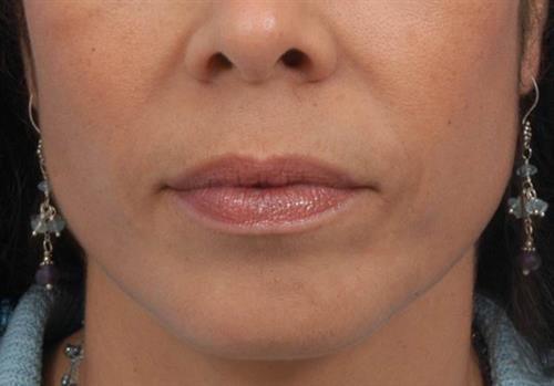 Injectable Fillers After Photo   Miami, FL   Baker Plastic Surgery