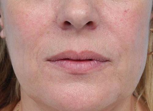 Lip Augmentation Before Photo | Miami, FL | Baker Plastic Surgery