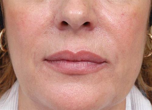 Lip Augmentation After Photo | Miami, FL | Baker Plastic Surgery