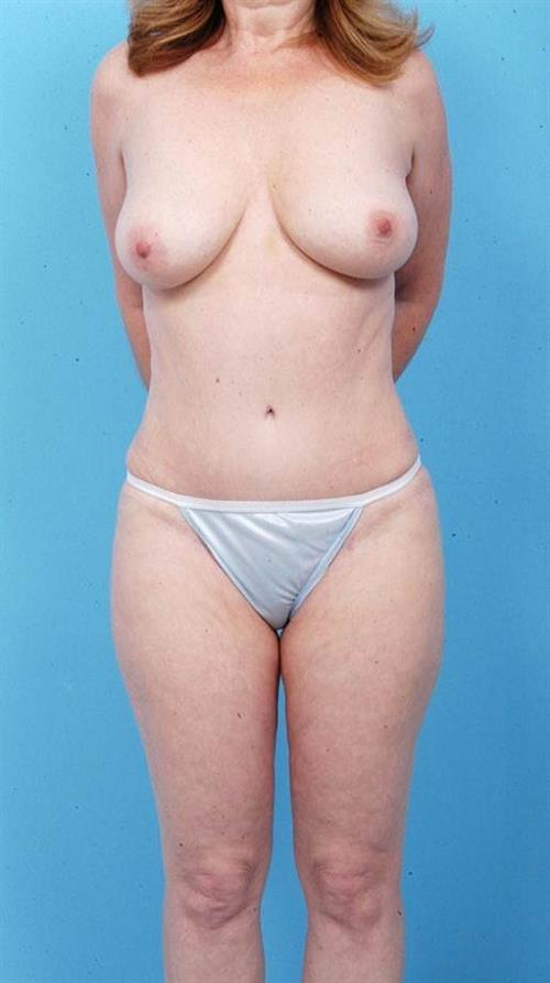 Tummy Tuck After Photo   Miami, FL   Baker Plastic Surgery