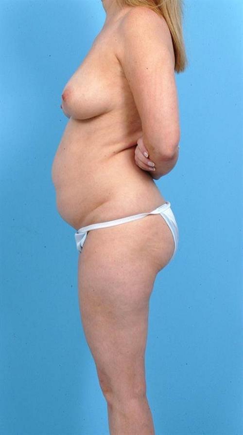 Tummy Tuck Before Photo   Miami, FL   Baker Plastic Surgery