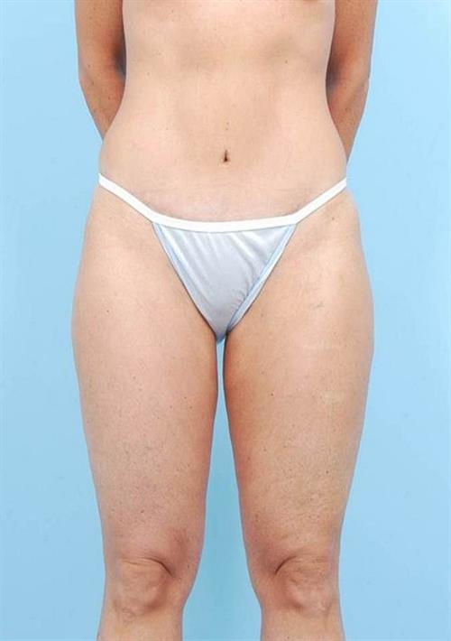 Tummy Tuck After Photo | Miami, FL | Baker Plastic Surgery