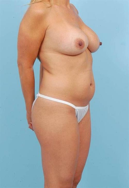 Tummy Tuck Before Photo | Miami, FL | Baker Plastic Surgery