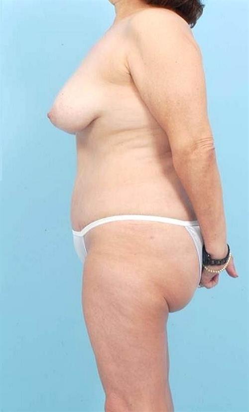 Tummy Tuck After Photo | Miami, FL | Baker Plastic Surgery