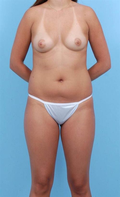 Liposuction Before Photo   Miami, FL   Baker Plastic Surgery