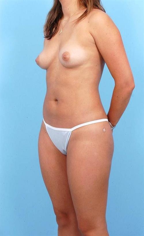 Liposuction After Photo | Miami, FL | Baker Plastic Surgery