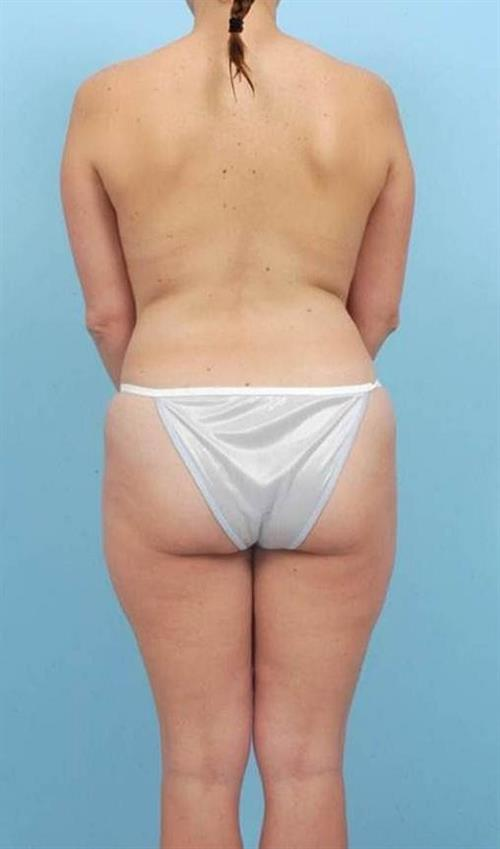 Liposuction Before Photo | Miami, FL | Baker Plastic Surgery