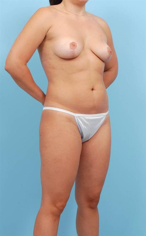 Liposuction Before Photo | Miami, FL | Baker Plastic Surgery