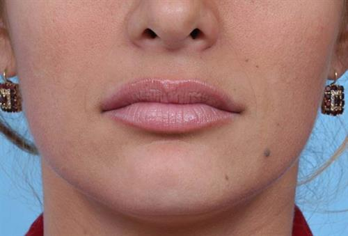 Lip Augmentation After Photo | Miami, FL | Baker Plastic Surgery