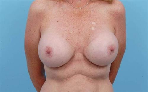 Breast Revision Before Photo | Miami, FL | Baker Plastic Surgery