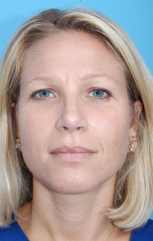 Rhinoplasty After Photo | Miami, FL | Baker Plastic Surgery