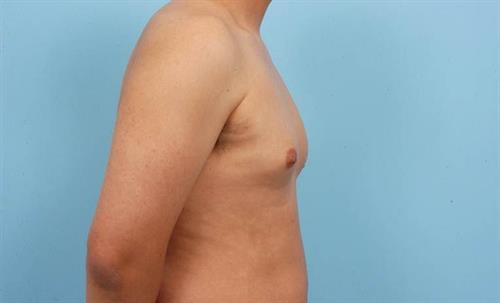 Gynecomastia Before Photo | Miami, FL | Baker Plastic Surgery