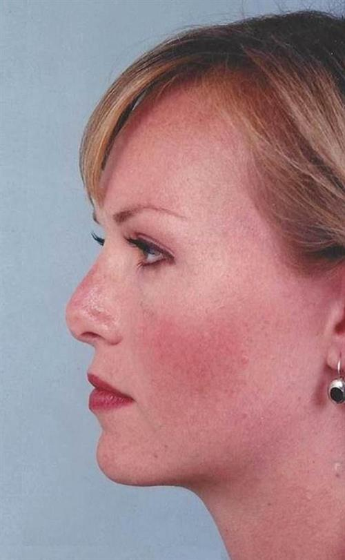 Rhinoplasty Before Photo | Miami, FL | Baker Plastic Surgery