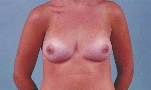 Breast Augmentation After Photo | Miami, FL | Baker Plastic Surgery
