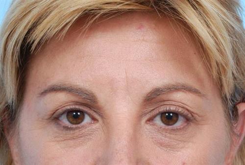 BOTOX®, Dysport® & XEOMIN® Before Photo | Miami, FL | Baker Plastic Surgery