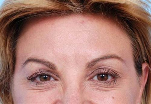 BOTOX®, Dysport® & XEOMIN® After Photo | Miami, FL | Baker Plastic Surgery
