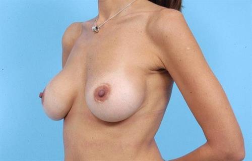 Breast Revision Before Photo   Miami, FL   Baker Plastic Surgery