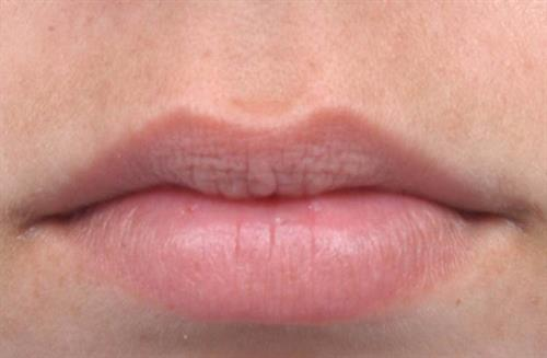 Lip Augmentation Before Photo | Miami, FL | Baker Plastic Surgery