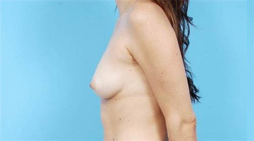 Breast Augmentation Before Photo | Miami, FL | Baker Plastic Surgery