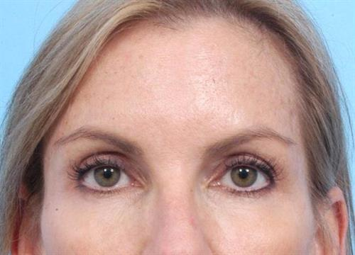Injectable Fillers After Photo | Miami, FL | Baker Plastic Surgery