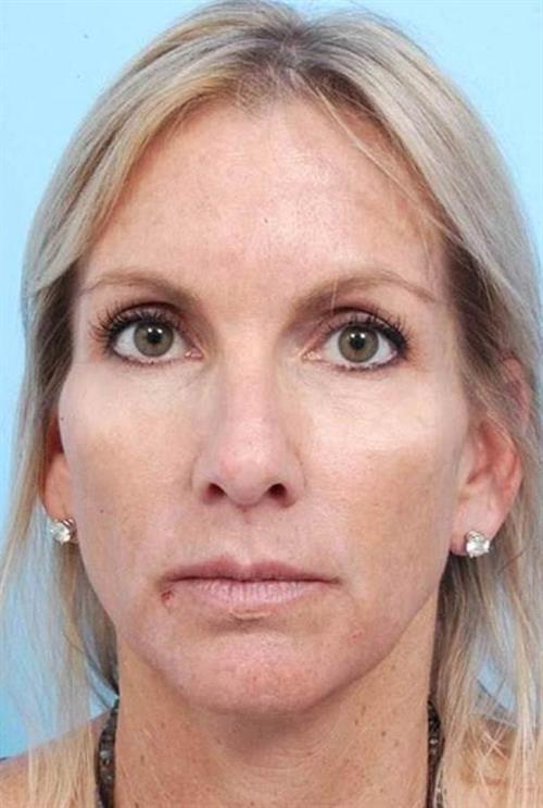 Injectable Fillers Before Photo | Miami, FL | Baker Plastic Surgery