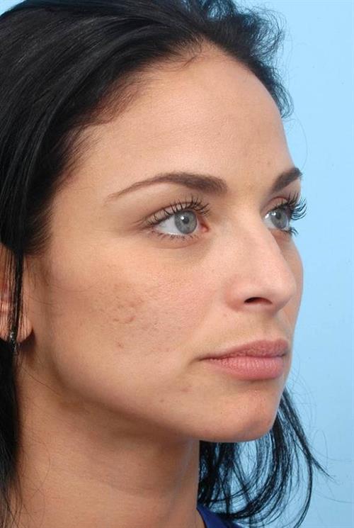 Rhinoplasty Before Photo | Miami, FL | Baker Plastic Surgery