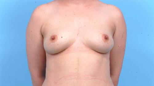Breast Revision After Photo | Miami, FL | Baker Plastic Surgery