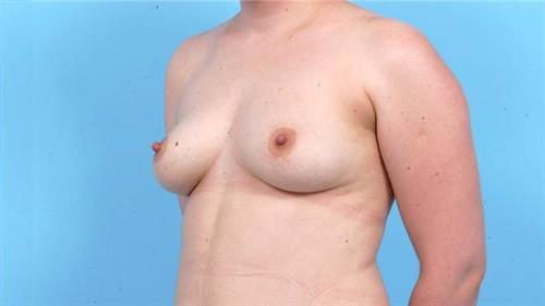 Breast Revision After Photo   Miami, FL   Baker Plastic Surgery