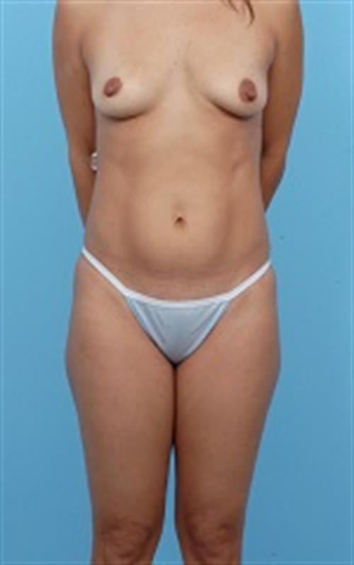 Tummy Tuck Before Photo | Miami, FL | Baker Plastic Surgery