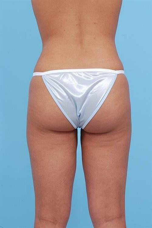 Liposuction After Photo | Miami, FL | Baker Plastic Surgery