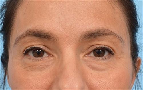 Eyelid Surgery Before Photo | Miami, FL | Baker Plastic Surgery