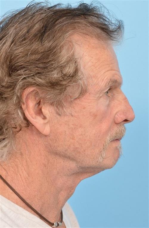 Facelift & Neck Lift Before Photo | Miami, FL | Baker Plastic Surgery
