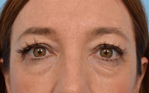 Eyelid Surgery Before Photo | Miami, FL | Baker Plastic Surgery