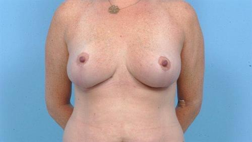 Breast Reduction After Photo | Miami, FL | Baker Plastic Surgery