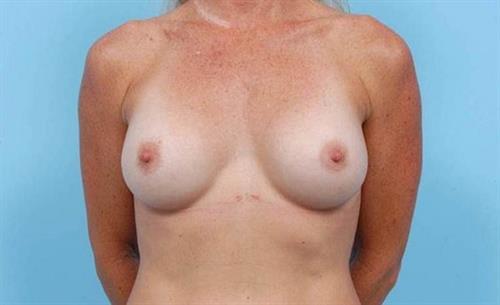 Breast Augmentation After Photo   Miami, FL   Baker Plastic Surgery