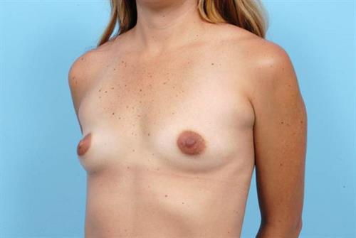 Breast Augmentation Before Photo   Miami, FL   Baker Plastic Surgery