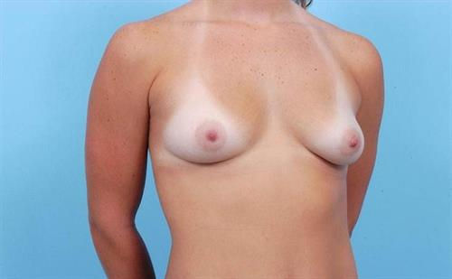 Breast Augmentation Before Photo | Miami, FL | Baker Plastic Surgery