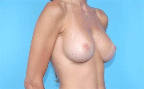 Breast Augmentation After Photo | Miami, FL | Baker Plastic Surgery