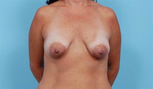 Breast Lift Before Photo   Miami, FL   Baker Plastic Surgery