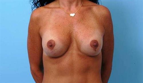 Breast Lift After Photo   Miami, FL   Baker Plastic Surgery